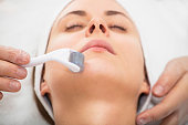 3 Benefits Of Micro Needling
